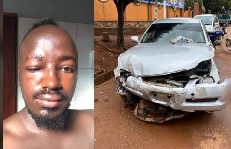 Narrow Escape: Singer Ykee Benda Cheats Death In Deadly Accident